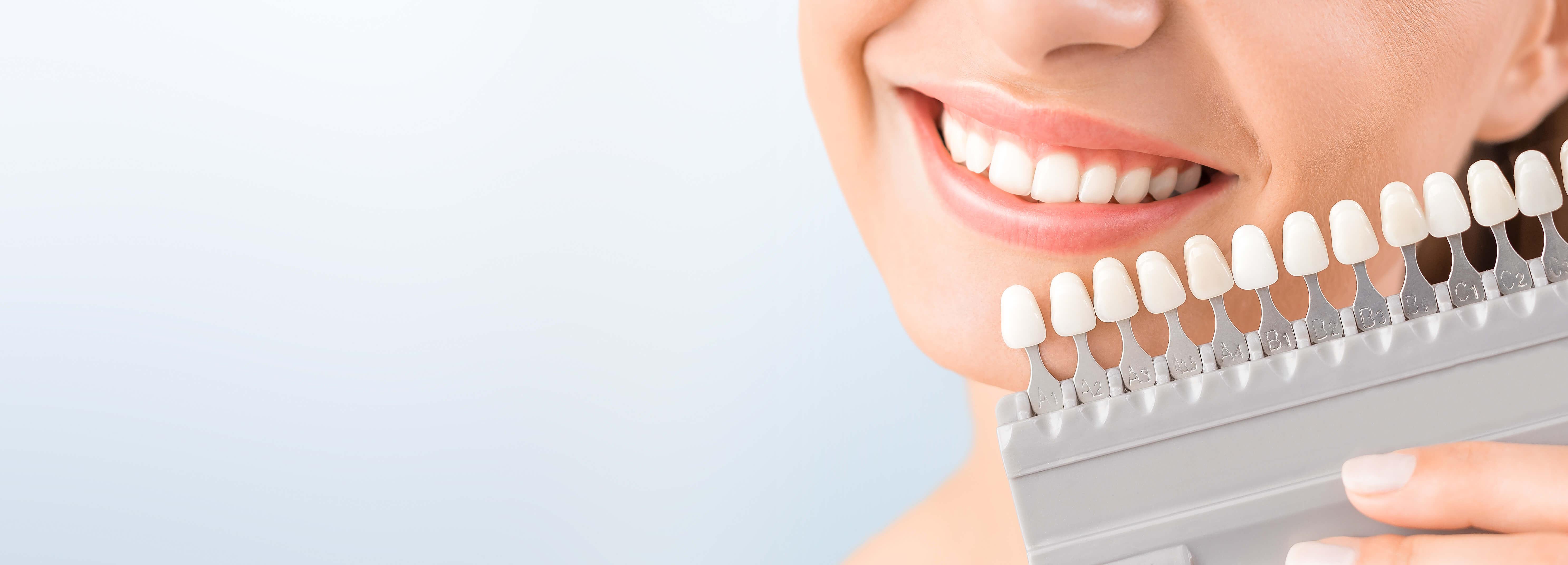 Dantų balinimas: kodėl tai verta patikėti profesionalams?