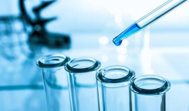 Laboratoriniai tyrimai