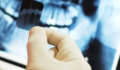 Dentalinės rentgeno nuotraukos